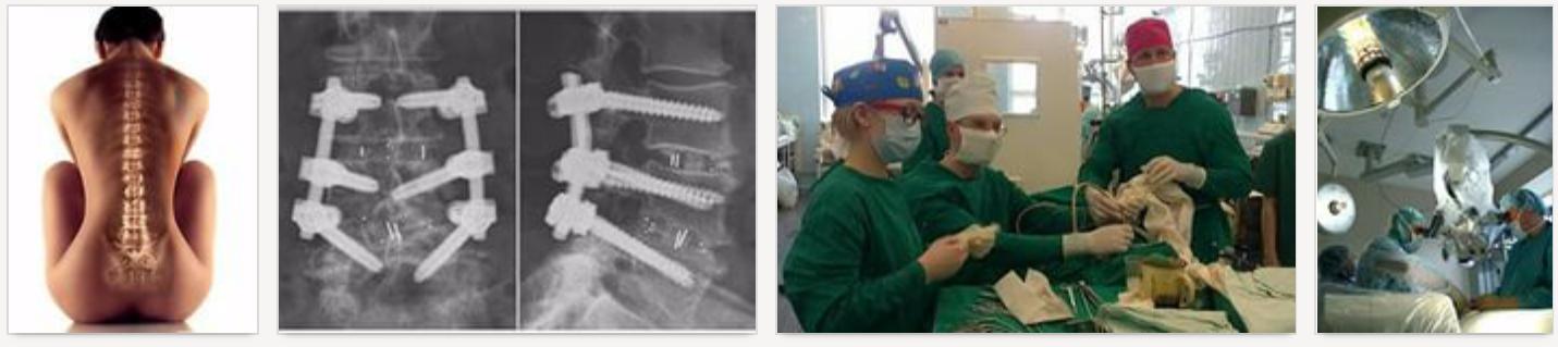 Какая больница делает операции на позвоночнике